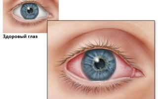 Виды конъюнктивита у детей: как их правильно различить
