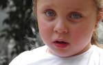 Аллергический ринит у ребенка: как победить болезнь