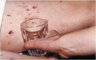 Признаки менингита у детей: как не пропустить опасность