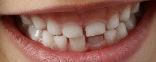 Из-за чего дети скрипят зубами во сне и как справиться с недомоганием
