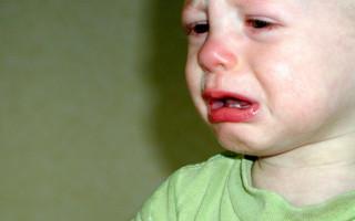 Насморк у детей: течение, лечение и возможные осложнения