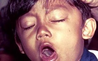 Коклюш у ребенка: первичные признаки и лечение