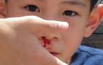 Почему у ребенка кровь из носа и как ее быстро остановить