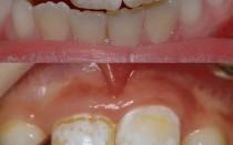 Почему на зубах у ребенка появляются белые пятна и как их убрать