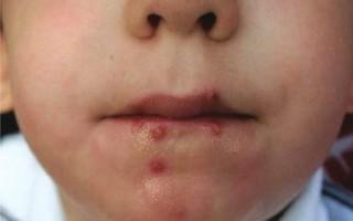 Герпес на губе ребенка: как вылечить грудничка и детей постарше
