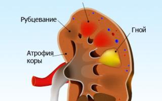 Пиелонефрит у детей: что поможет быстро справиться с недугом