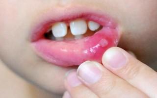 Стоматит у ребенка признаки, причины и лечение