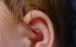 Отит у ребенка симптомы и лечение заболевания