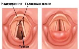 Ларинготрахеит у ребенка: симптомы и лечение заболевания