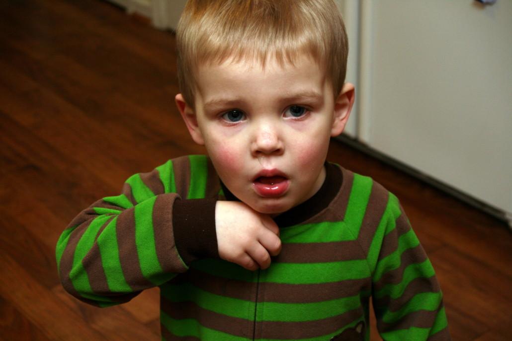 Сухое покашливание у ребенка