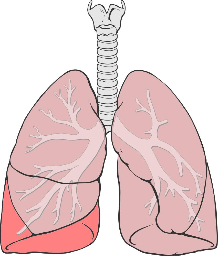 Пневмония у детей до года: симптомы и диагностика. Лечение пневмонии у детей до года в Москве