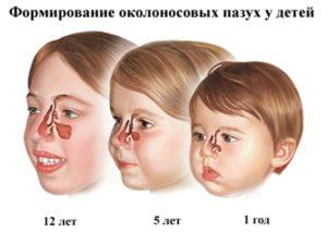 Развитие пазух у ребенка