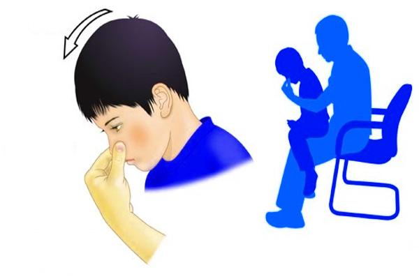 первая помощь если у ребенка идет кровь из носа