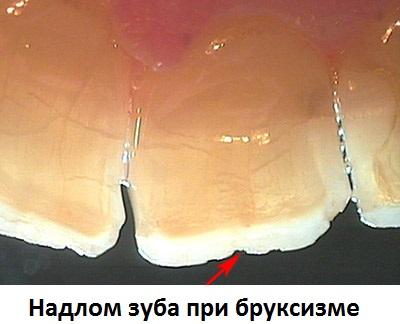 Надлом зуба при бруксизме