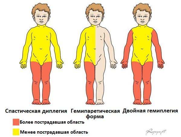 признаки ДЦП у детей