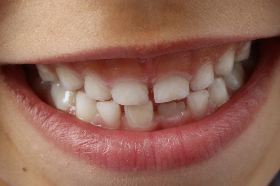 заболевания полости рта у детей