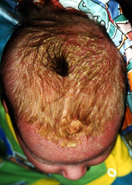 себорийный дерматит