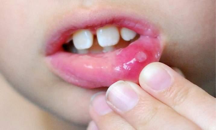 Как обрабатывать рот ребенку при стоматите