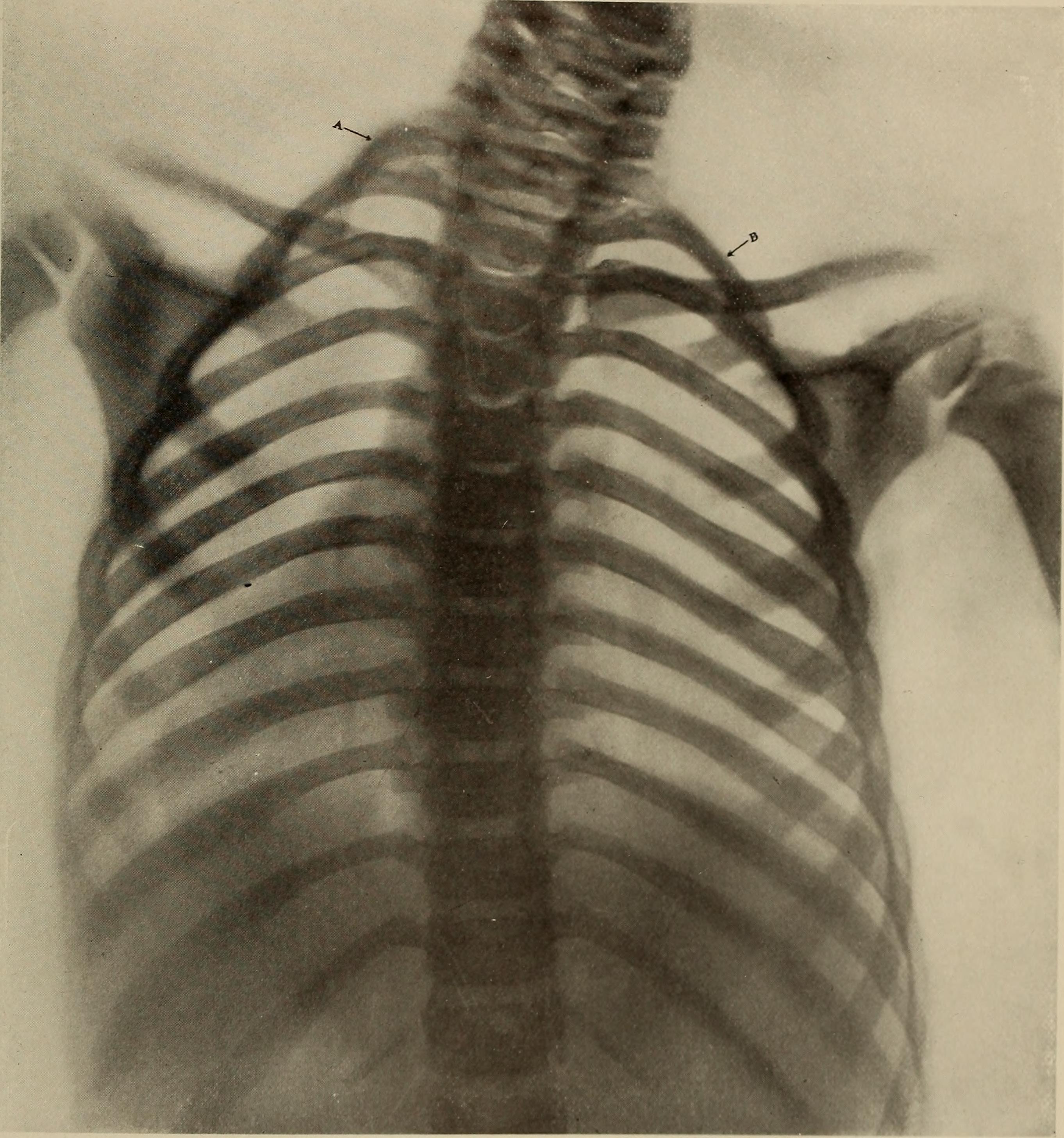 рентген при кривошеи у грудничка