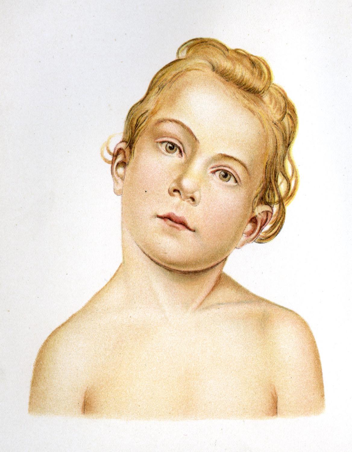 осложнения кривошеи у детей